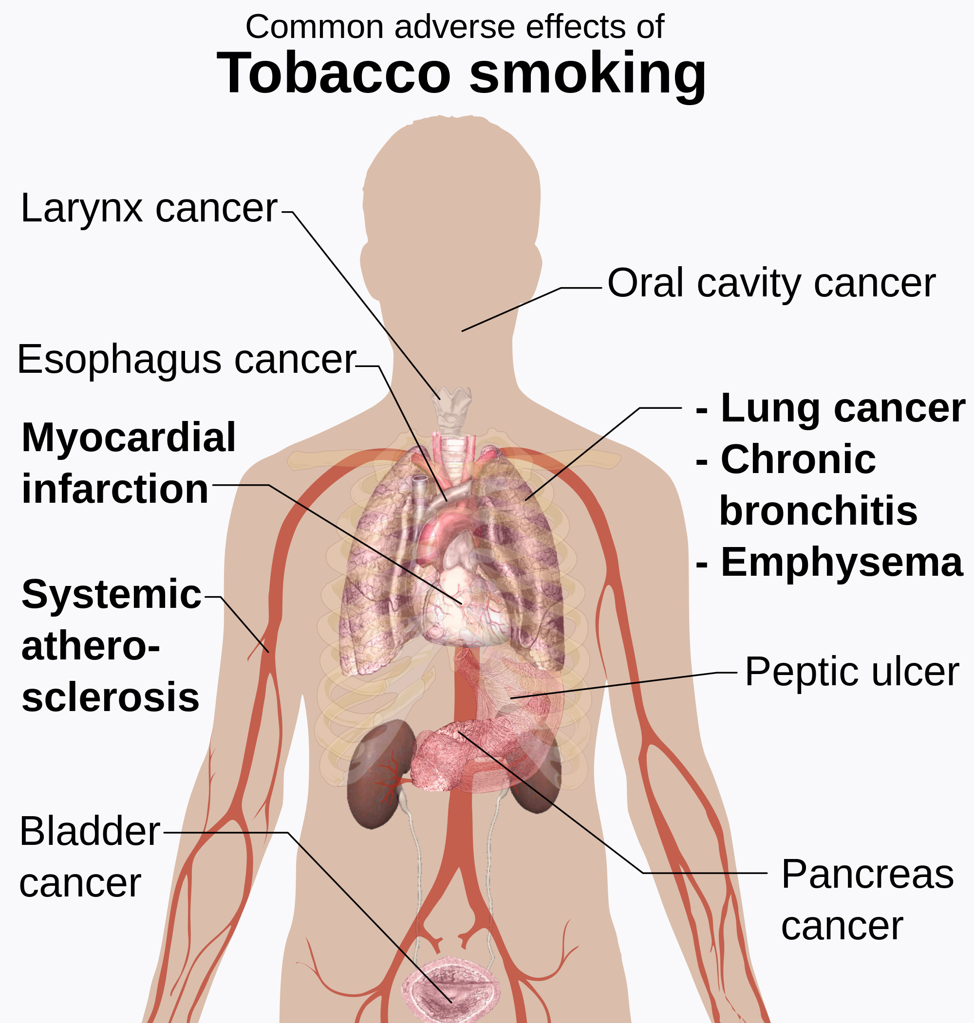 Adverse effects of tobacco smoking - Quit Now