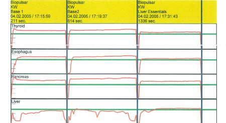 Organ Biofeedback Graph